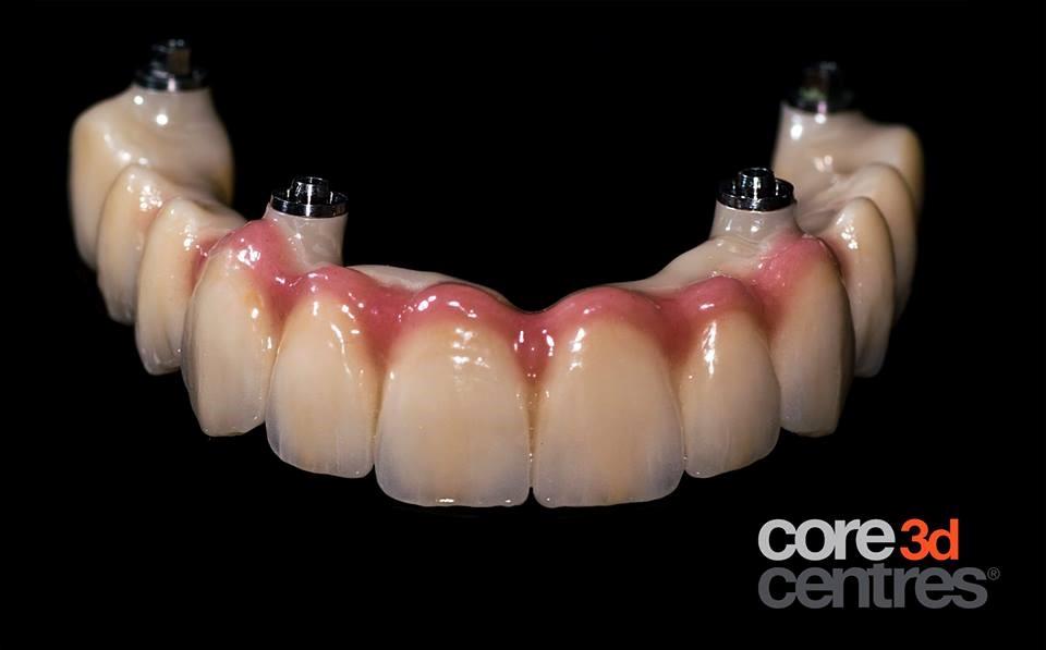 ImplantBridge Cyrkon DentalDirekt