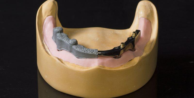 Belki-implantologiczne
