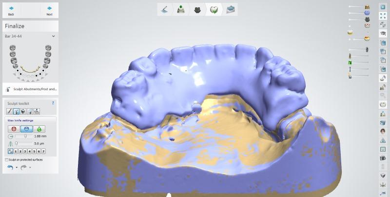ImplantStudio
